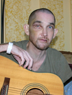 Jimmy Lee Dean After Near Fatal Assault (courtesy of Dallas Voice)