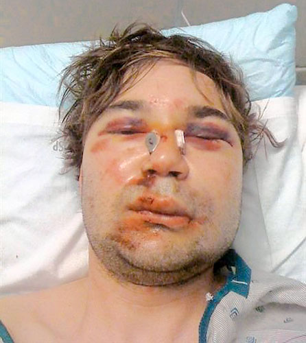 Brooklyn Man Brutally Gay Bashed. Williamsburg native, Barie Shortell, ...