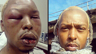 Christmas gay bashing victim Kenni Shaw, 30, before and after attack. (Instagram image posted by the victim.)
