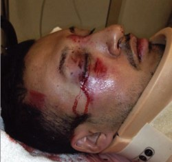 Mikey Partida, 32, savaged in anti-gay hate crime in Davis, California [Facebook image].