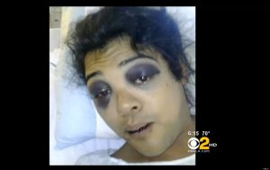 Victor Diego, 22, transgender and gay victim of brutal beating on Hollywood Boulevard.