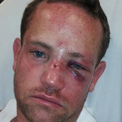 Jason Jacobs, gay 37-year-old, attacked in his own neighborhood.