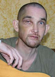 Jimmy Lee Dean, after the brutal July 2008 hate crime attack that nearly took his life.