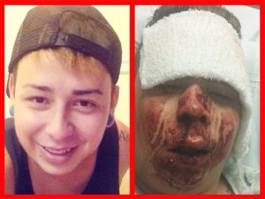 Jared Olson, victim of anti-gay hate crime, before and after the Labor Day Weekend assault.