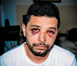 David Jimenez, a non-gay victim of anti-gay hate, was brutally beaten on September 25 while walking his dogs (Brooklyn Paper image - Stefano Giovannini).