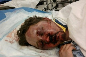 Gay bashing victim Arron Keahey, 24, after teen assailant savagely beat him last Labor Day.