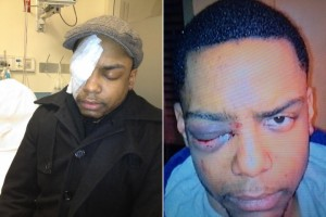 Taj Patterson, 22, gay man savagely attacked by Hasidic Jews in Williamsburg, NY shouting anti-gay slurs (NY Post images).
