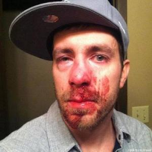 Drew Bartscher, 27, straight ally who spoke out against anti-gay hate speech, and was beaten because of it.